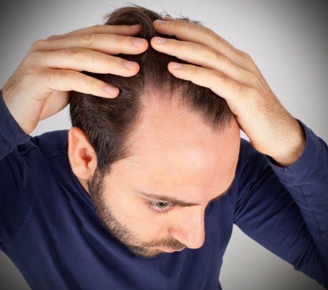 Alopecia, hombre, perder pelo.