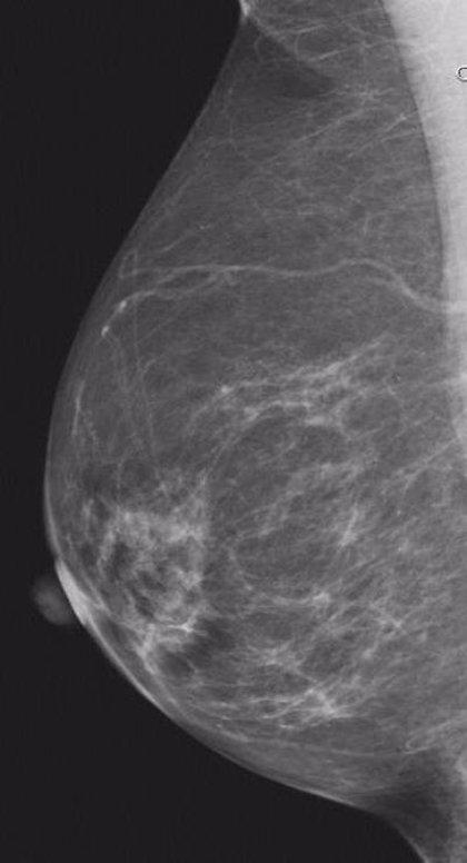 El uso de ecografías puede ayudar a diagnosticar el cáncer de mama