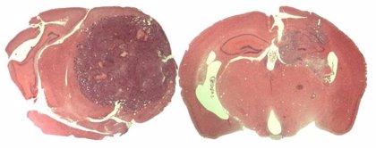 Encuentran un factor clave para el tratamiento del glioblastoma