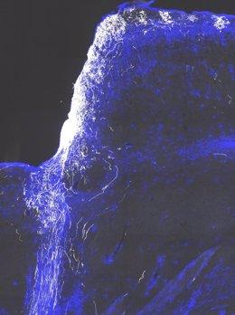 Cóctel farmacológico podría restaurar la visiópn en nervios ópticos dañados