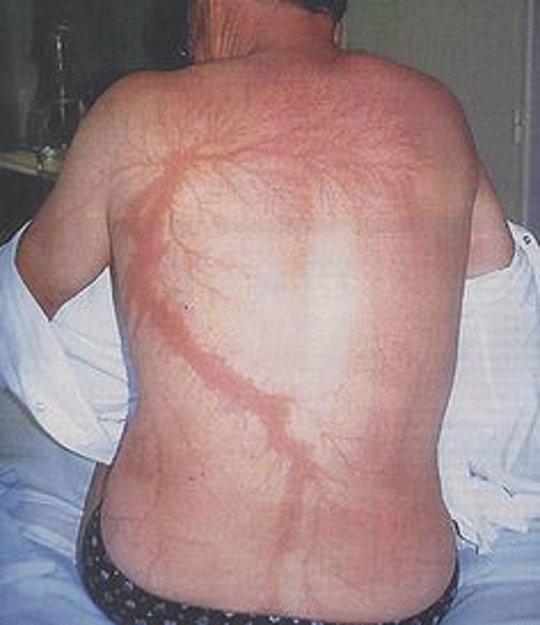 Resultado de imagen para impacto de un rayo en una persona