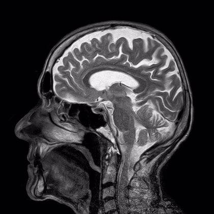 ¿Por qué los tumores cerebrales más agresivos son tan difíciles de tratar?