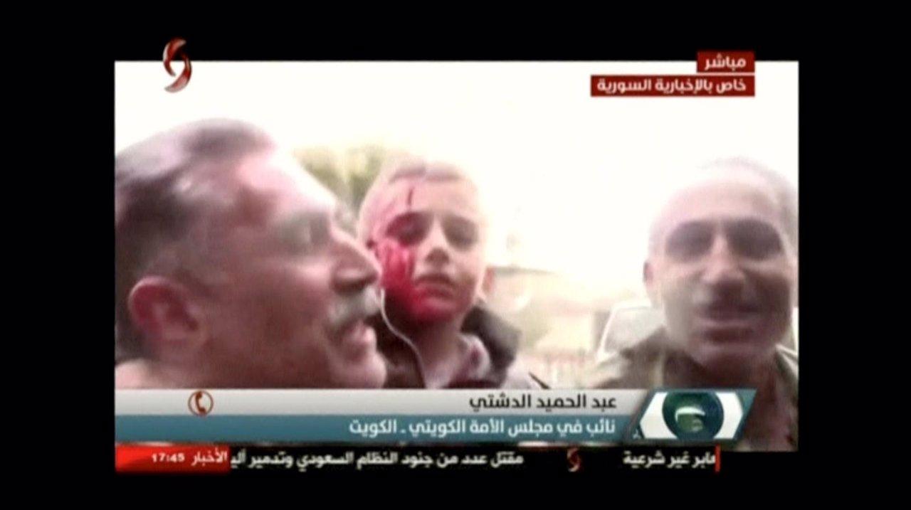 Atentados en Damasco reivindicados por Daesh dejan al menos 80 muertos