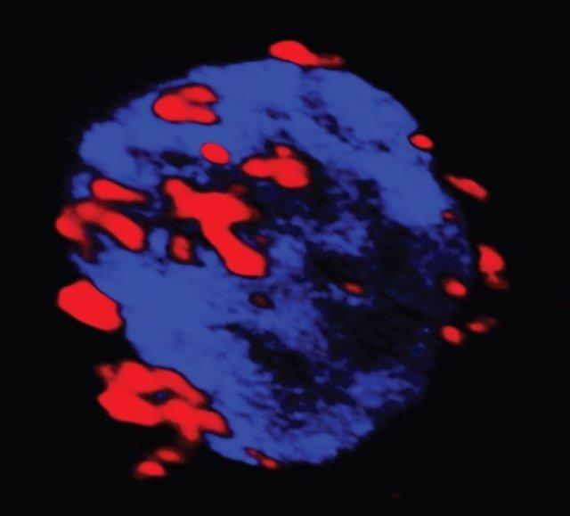 Célula autoreactiva (azul) que capta los nanofármacos (rojo)