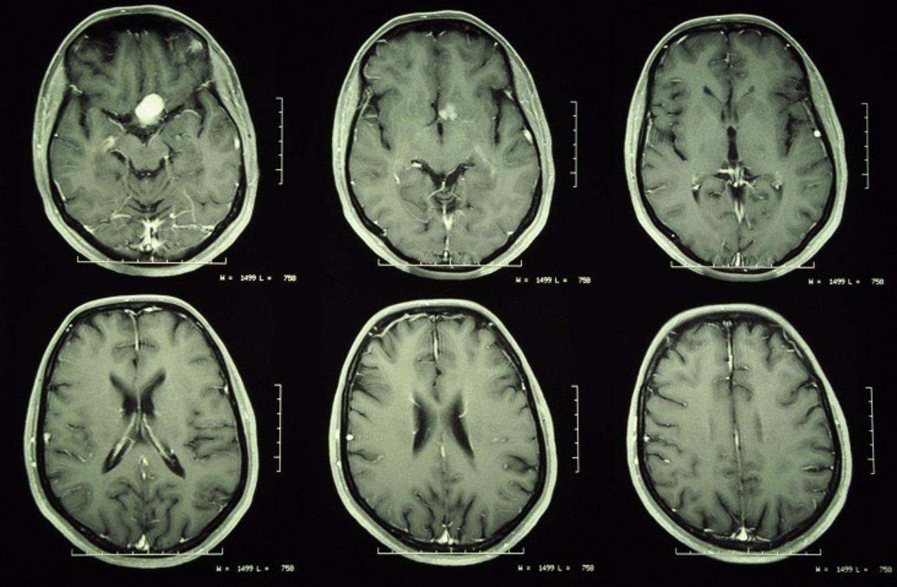 Meningioma, tumor cerebro