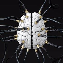 Cerebro, ictus