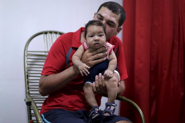 Bebé con microcefalia en Brasil