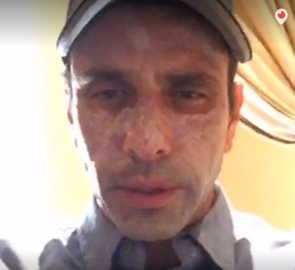 Capriles viaja a EEUU para tratarse una lesión en la piel, pero descarta tener cáncer