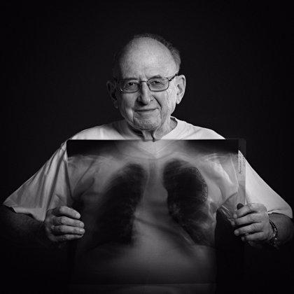 """""""Si no se trata adecuadamente, la tuberculosis puede ser mortal"""""""