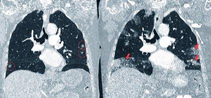 La tomografía computarizada de baja radiación detecta el cáncer de pulmón en fase precoz