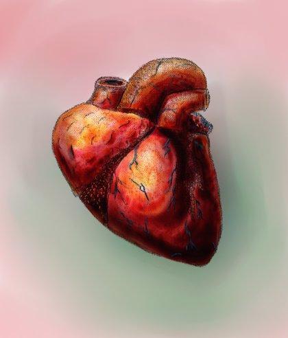 Vigilar la presión arterial pulmonar en la insuficiencia cardiaca para evitar ingresos