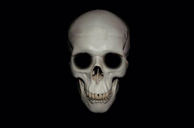 La cirugía de base de cráneo, de la sabana a la jungla