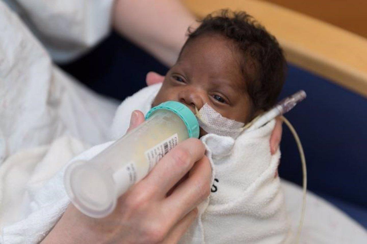 Bebé prematuro tomando un biberón de leche materna