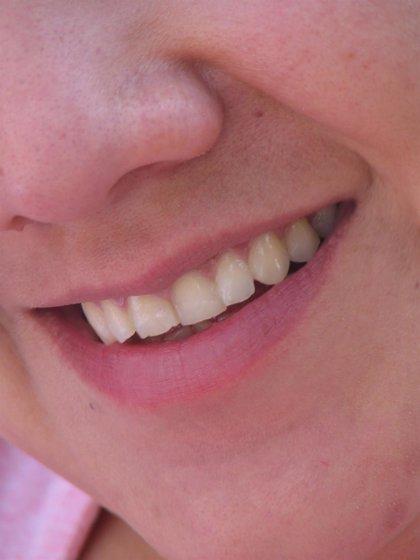 El 34% de adolescentes y 24% de adultos en España padece sensibilidad dental