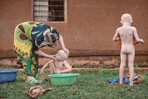 Niños albinos en Tanzania