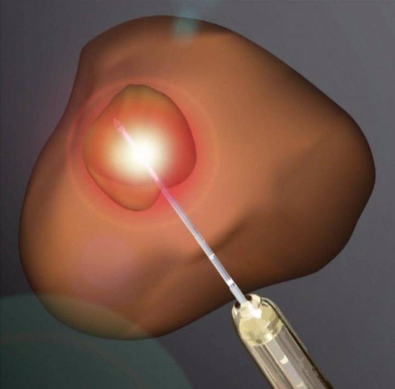 Ablación por láser del cáncer de próstata