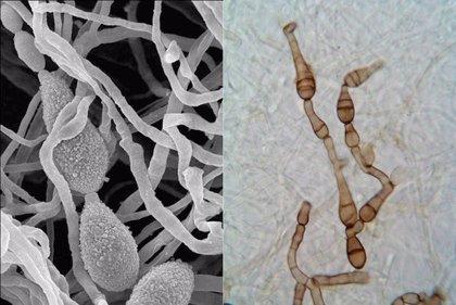 Un nuevo principio activo bloquea el crecimiento de hongos