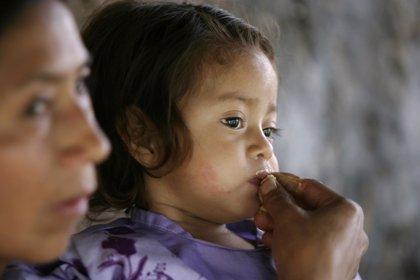 La mitad de los niños menores de 5 años en Guatemala sufre desnutrición