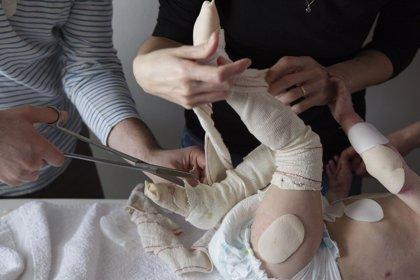 Curar y 'fabricar' piel sana para pacientes con enfermedad de 'piel de mariposa'