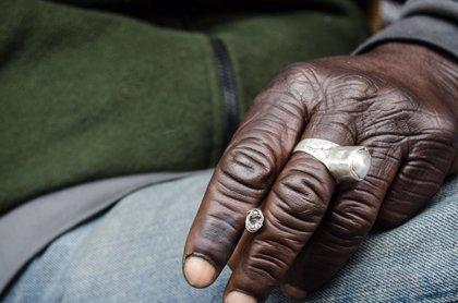 Las personas de razas negra tienen más riesgo de morir por melanoma que los blancos