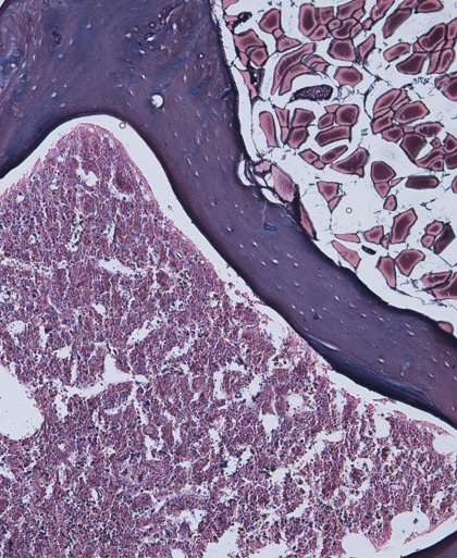 Una proteína podría potenciar la regeneración neuronal tras una lesión medular