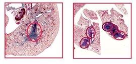 La falta de una proteína nuclear provoca que los tumores sean más agresivos