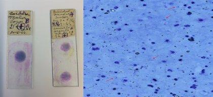 Así era la malaria europea, que se erradicó hace 50 años
