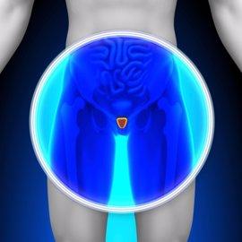 Un stent urológico temporal resuelve problemas de próstata sin cirugía
