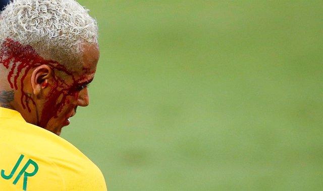 Neymar sangra tras un codazo en el Brasil - Bolivia