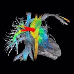 Radiología-SERAM: Reducir las dosis de radiación permite un mayor uso del TAC en
