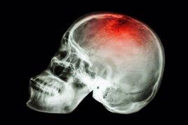 """El riesgo de ictus asociado a la fibrilación auricular aumenta """"notablemente"""" con la edad"""