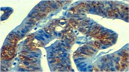 La resistencia de algunos tipos de cáncer a la quimioterapia tiene su porqué