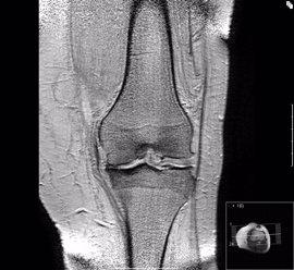 Expertos investigan cómo combinar células y materiales para regenerar el cartílago de las articulaciones