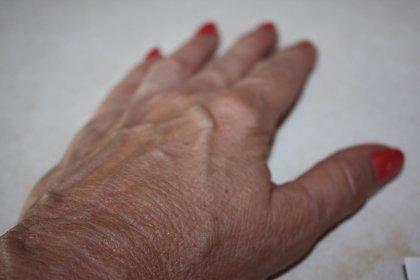 Hasta el 40% de los pacientes con distonía se diagnostican erróneamente