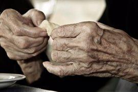 ¿Cuál es el riesgo cardiovascular de pacientes con artritis reumatoide?