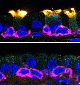 IRB descubre un gen asociado a un grupo de enfermedades raras, las ciliopatías
