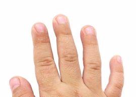 La dermatitis atópica afecta a un 30% de la población infantil en los países occidentales