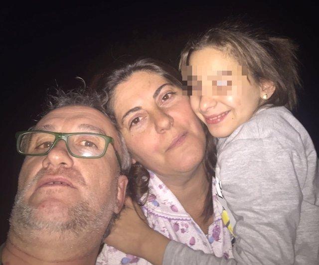 Familia de la niña con envejecimiento prematuro.