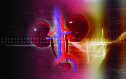 Uno de cada 10 personas sufrirá un episodio de cálculos renales a lo largo de su vida