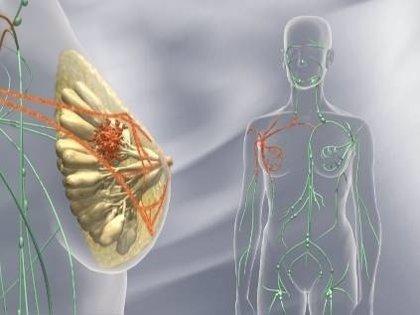 Descubren cambios moleculares en el cáncer de mama que hace metástasis cerebrales