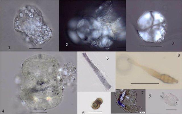 Imágenes de restos de alimentos en sarro de dientes