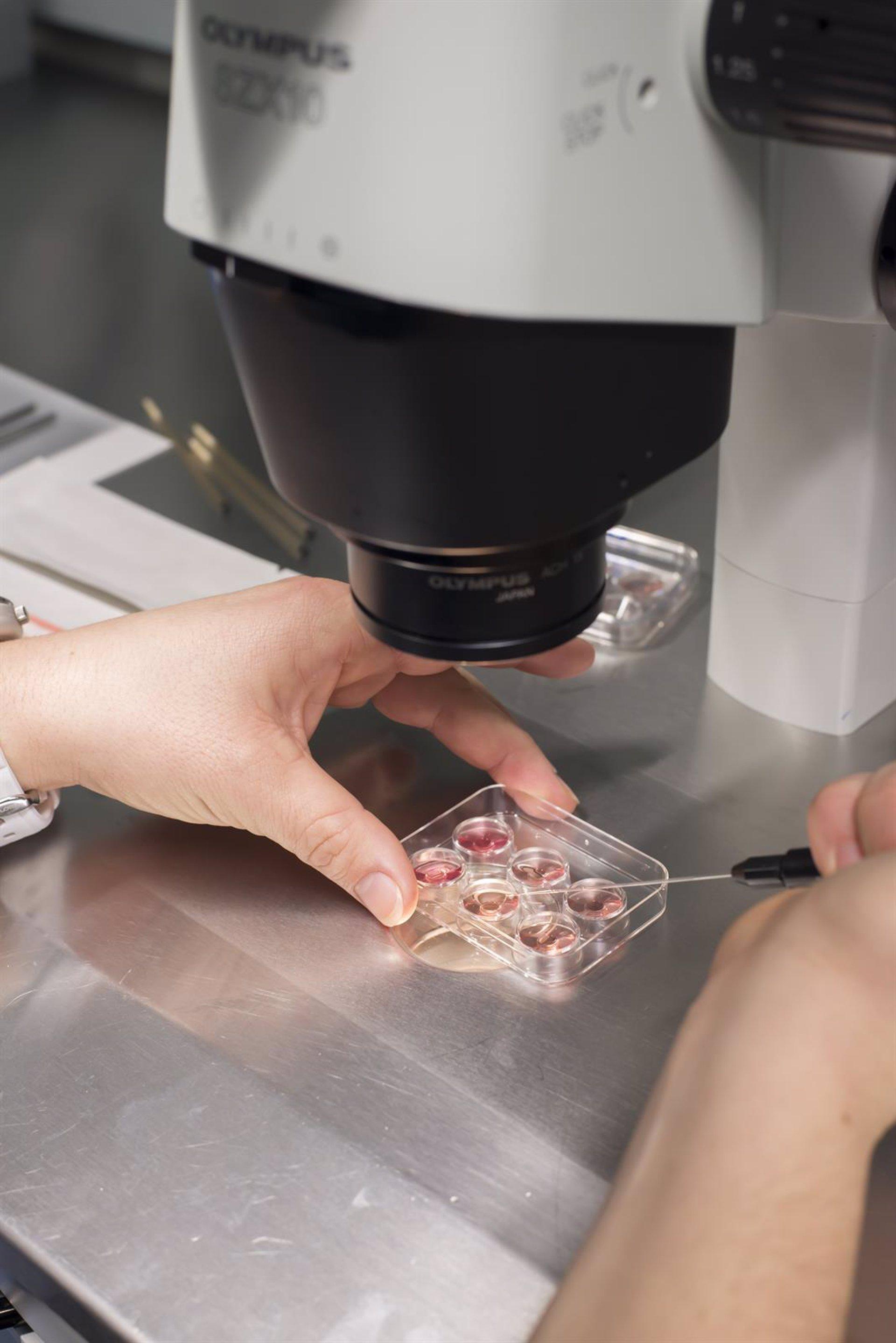Donacion de ovulos compensacion economical house