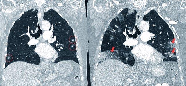 Evolución del cáncer de pulmón