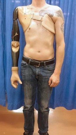 Brazo protésico que detecta señales de los nervios espinales