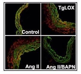 Identifican una nueva fuente de estrés oxidativo asociada a la hipertensión