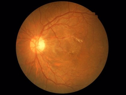Consiguen prevenir con vitamina B3 el glaucoma en ratones