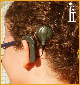 Implante coclear antes y después en el tratamiento de la sordera profunda