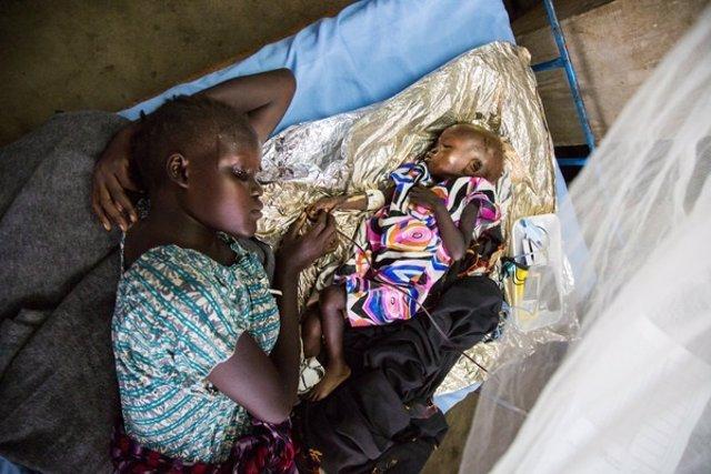 Una madre con su hijo desnutrido en un centro de tratamiento en Yuba