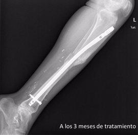 España lidera una investigación europea para comprobar el beneficio de las células madre en la regeneración ósea
