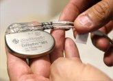 Foto: ¿Pueden los aparatos eléctricos afectar al marcapasos?